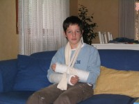 Corentin with two broken arms
